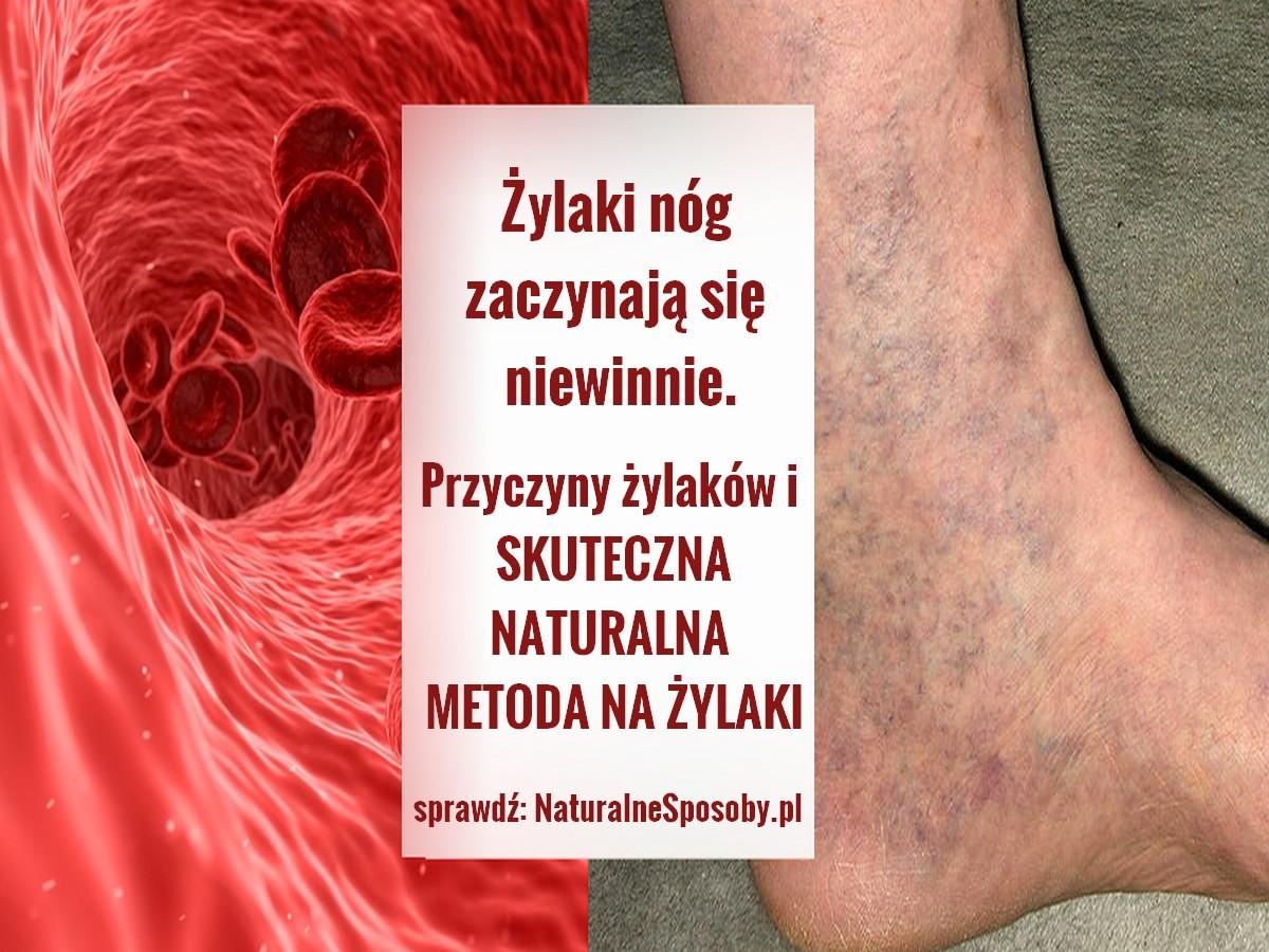 NaturalneSposoby.pl-zylaki-nog-przyczyny-zdjecia-domowy-sposob-na-zylaki-naturalny-przepis