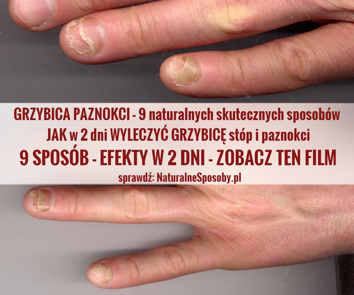 naturalnesposoby.pl-grzybica-paznokci