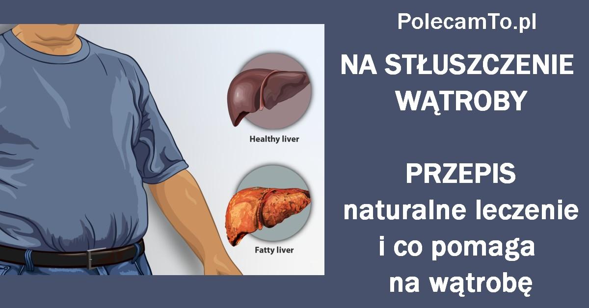 PolecamTo.pl-stuszczenie-watroby-sposoby-domowe
